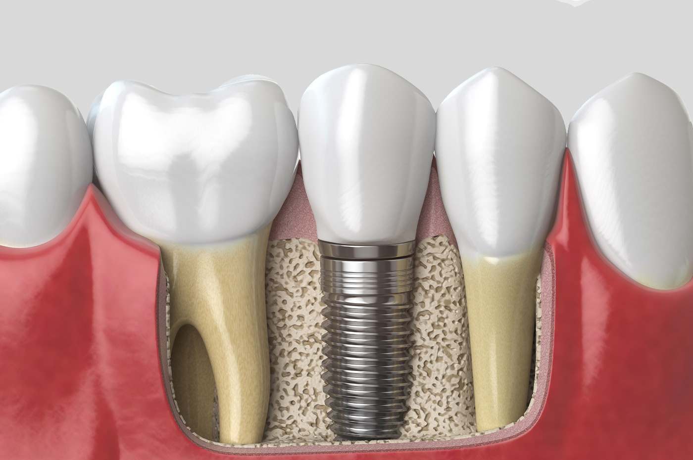 Tooth With Implant